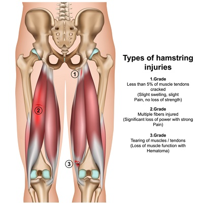 Sporting Injuries Brisbane